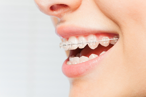 Caring for Your Teeth After Braces May Be Slightly Different
