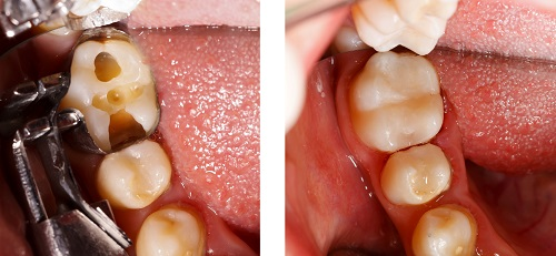 Tooth Colored Filling Before After